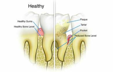 Home Remedies to Clean Teeth Plaque