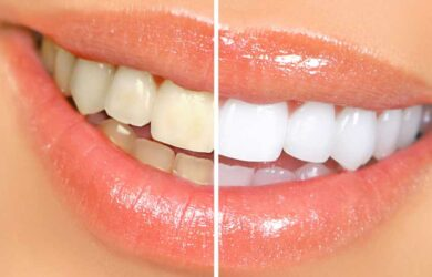 How-to-Whiten-Teeth-Naturally