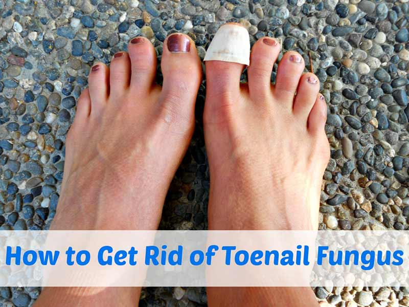 How to Get Rid of Toenail Fungus - Best Herbal Health