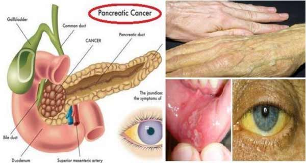 Warning Signs Of Pancreatic Cancer Best Herbal Health