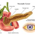 11Early Warning Signs of Pancreatic Cancer