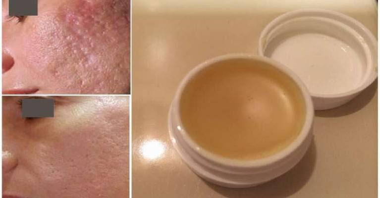 Crème anti-cicatrices