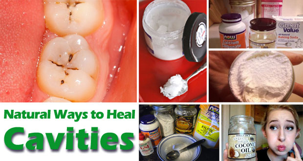 Natural Ways To Fight Cavities