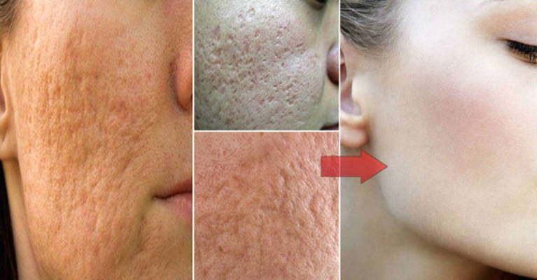 Minimize Pores on Your Face at Home   Best Herbal Health