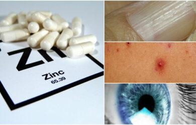 zinc deficiency signs