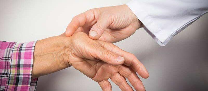 treating rheumatoid arthritis