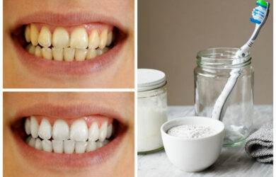 Homemade Teeth Whitening Paste