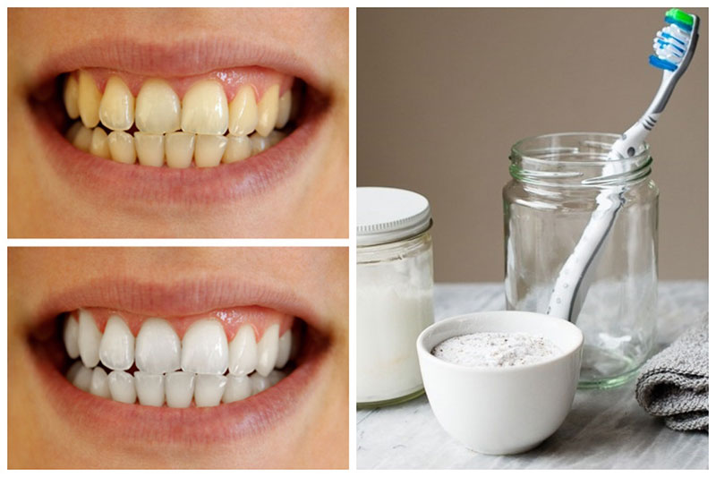 Homemade Teeth Whitening Paste