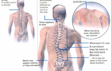 Scoliosis Pain Relief