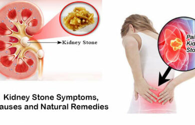 kidney stone symptoms causes