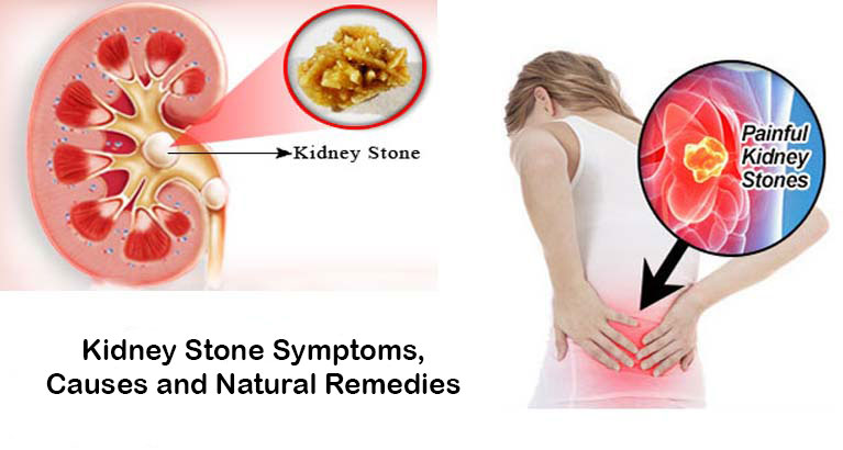 kidney stone symptoms, causes and natural remedies | bestherbalhealth, Human Body