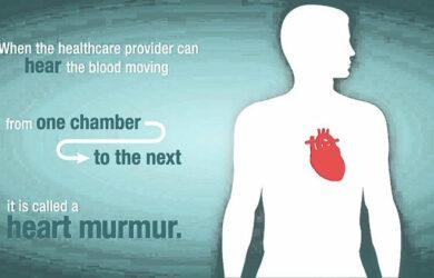 Heart Murmur Symptoms