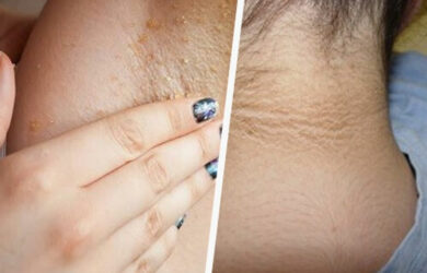 Home Remedies to Whiten Underarms