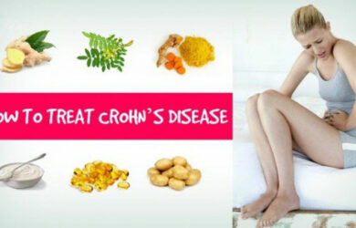 Treat Crohns Disease