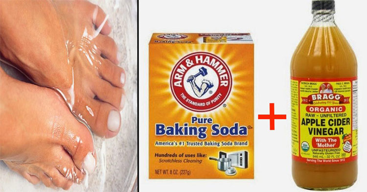 Nail Fungus Natural Treatment Vinegar