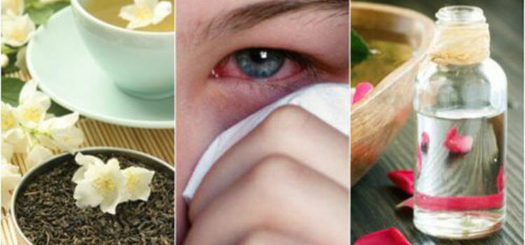 Treat Eye Infection Naturally