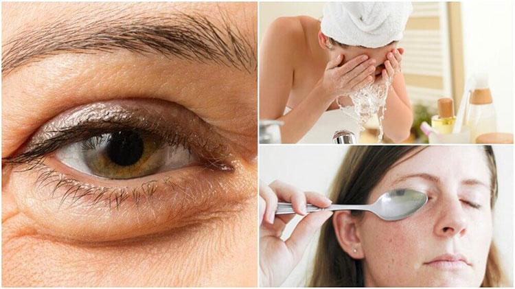 Natural Ways To Reduce Eye Bags